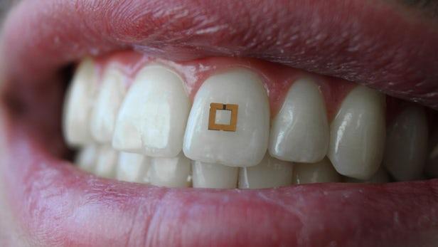 Diş Sensör